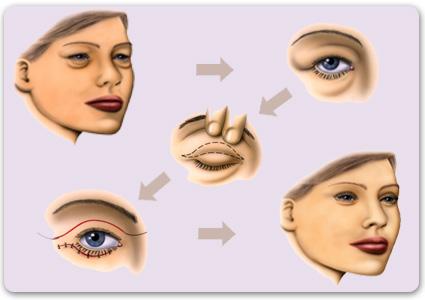 chirurgie esthetique des paupieres